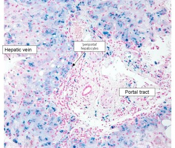 Histology of iron overload (Perls stain)