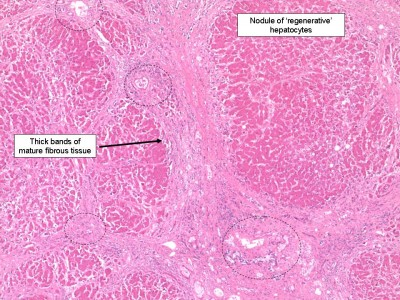 Histology of liver cirrohosis