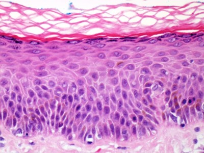 Histology of normal skin